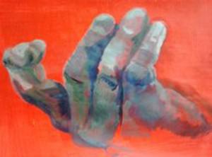 broken hand kl